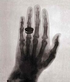 worlds-first-x-ray-1895-rontgens-wife-hand