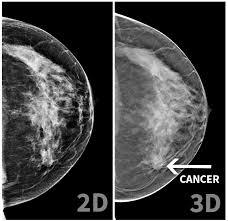 2d v 3d mammogram