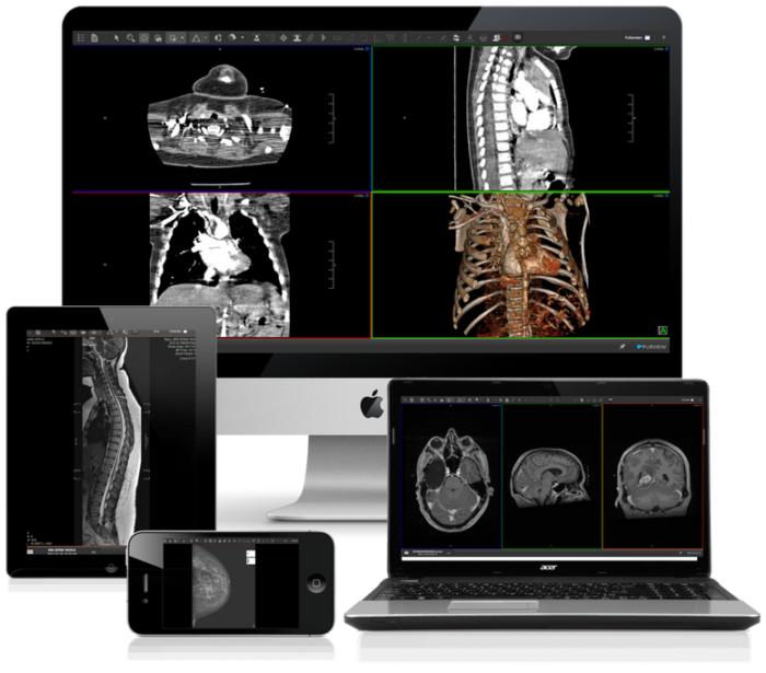Multi-Device-ViVA-Viewer-Images-e1510765231645