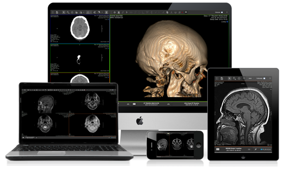 ViVA-for-Neuro_Viewer-Images